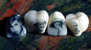 Tooth tattoos2